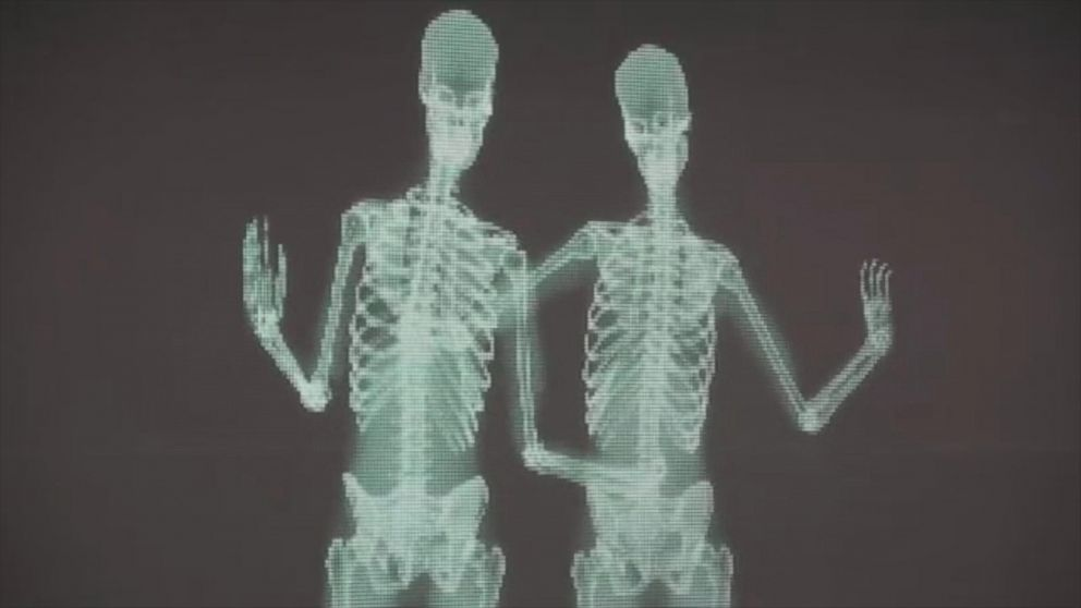 Viral Video of Skeletons Proves 'Love Has No Labels' - ABC