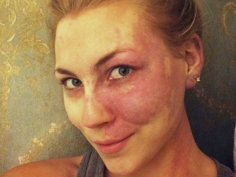 PHOTO: Paige Billiot, 23, an actress and filmmaker from Los Angeles, was born with a dark red mark covering her left cheek known as a port-wine stain.