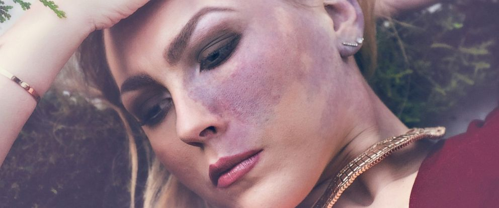 PHOTO: Paige Billiot, 23, was born with a dark red mark covering her left cheek known as a port-wine stain. The young woman collaborated with a number of photographers to create an artistic photos series to bring positive attention to skin discolorations.