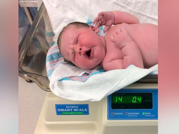 PHOTO: South Carolina parents Arthur Keisler and Cindy Richmond were shocked by their 14-pound newborn, Colin.