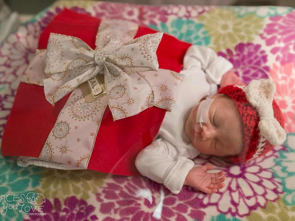 PHOTO: Santa turned the babies in the NICU at Saint Lukes Hospital of Kansas City into tiny gifts this holiday season.