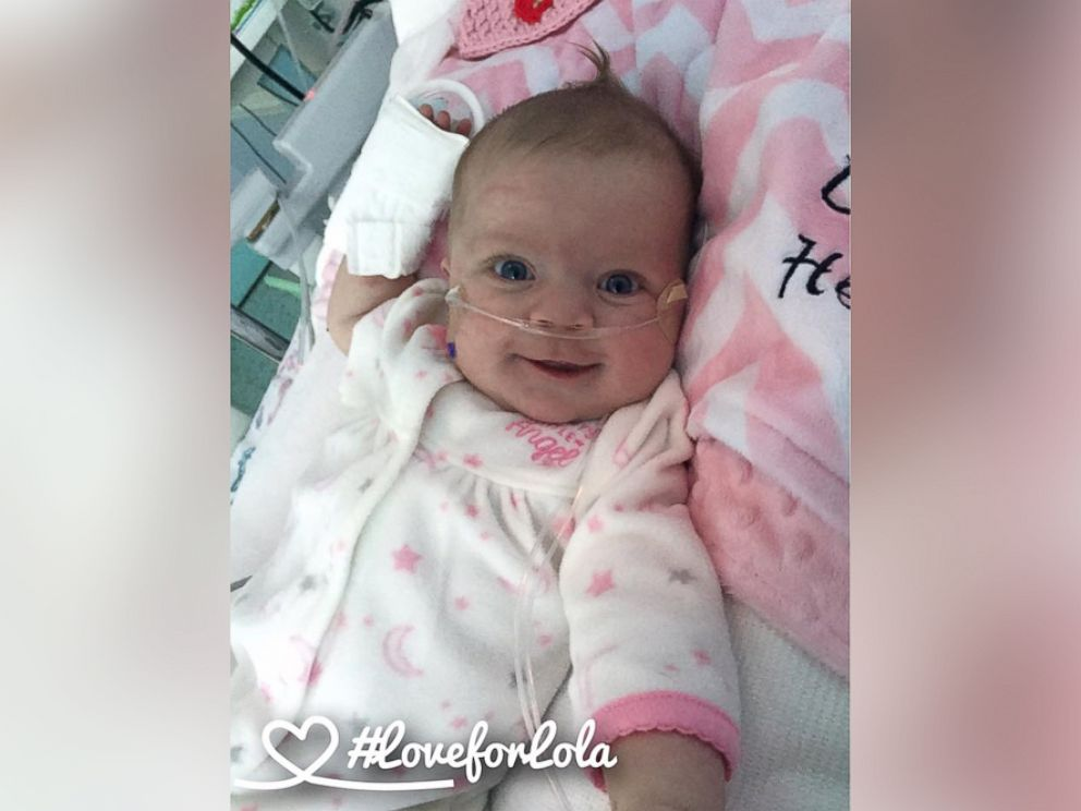 PHOTO: Laura Catrons 3-month-old daughter Lola recently had open heart surgery and was only soothed by watching the Dallas Cowboys.