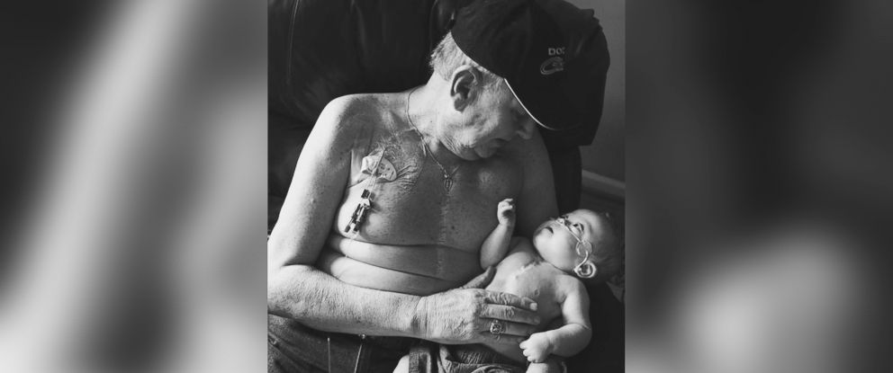 PHOTO: Grandfather Allan Halstead with his grandson Kolbie Gregware who both underwent open heart surgery are photographed together.