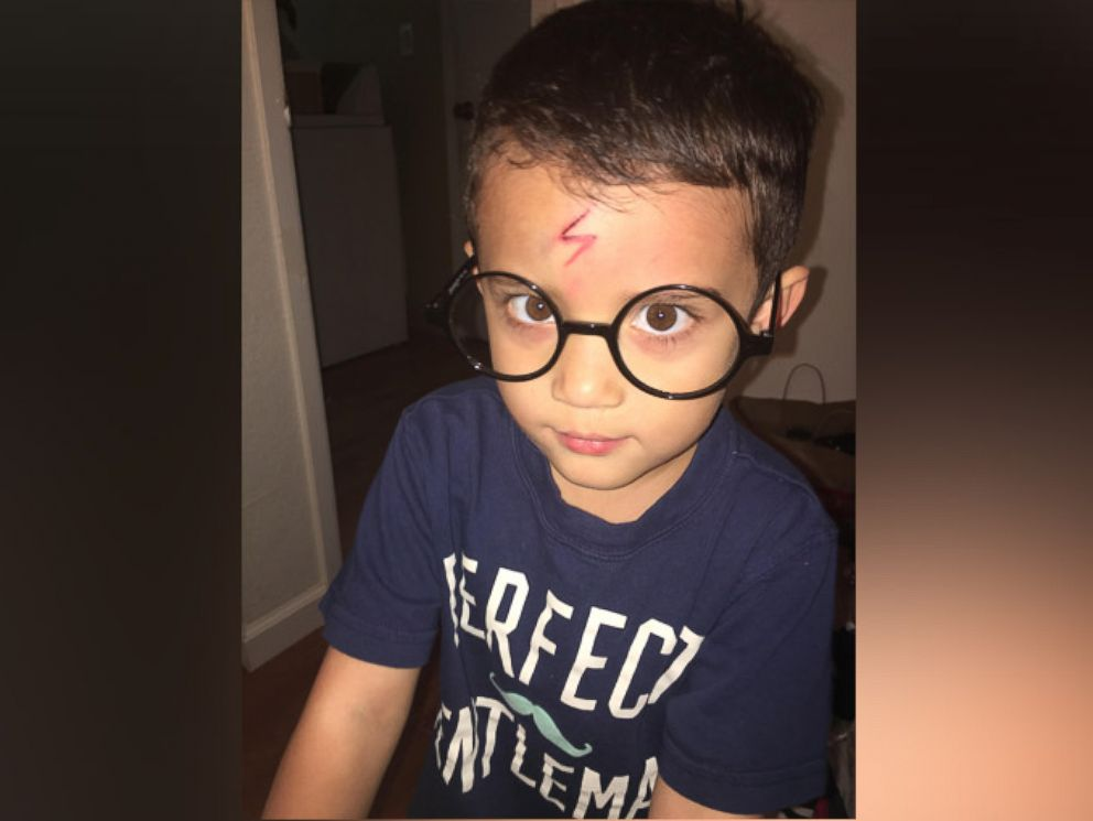 PHOTO: Little Ayden Benesh-Lastrellas mother Brittaney turned him into a miniature Harry Potter after he was embarrassed about his forehead scar.