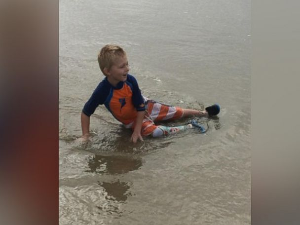 PHOTO: Liam Brenes, 4, had his prosthetic leg stolen on Sunday while at Crystal Cove State Beach with his family in Orange County, California.