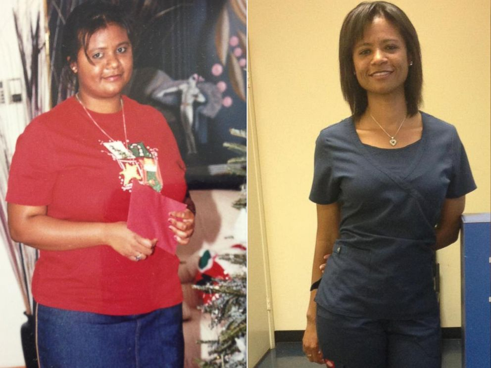 PHOTO: After years of struggling with being overweight, Tudie-Ann Clarke lost 105 pounds in two years.