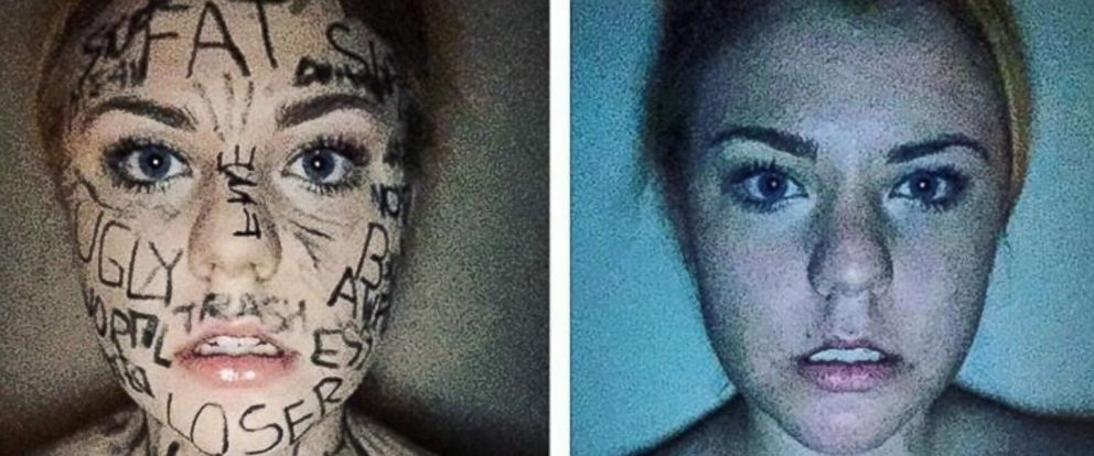 PHOTO: Lauren Brocious, 17, of Winchester, Virginia created a powerful video after her friend was cyber-bullied.