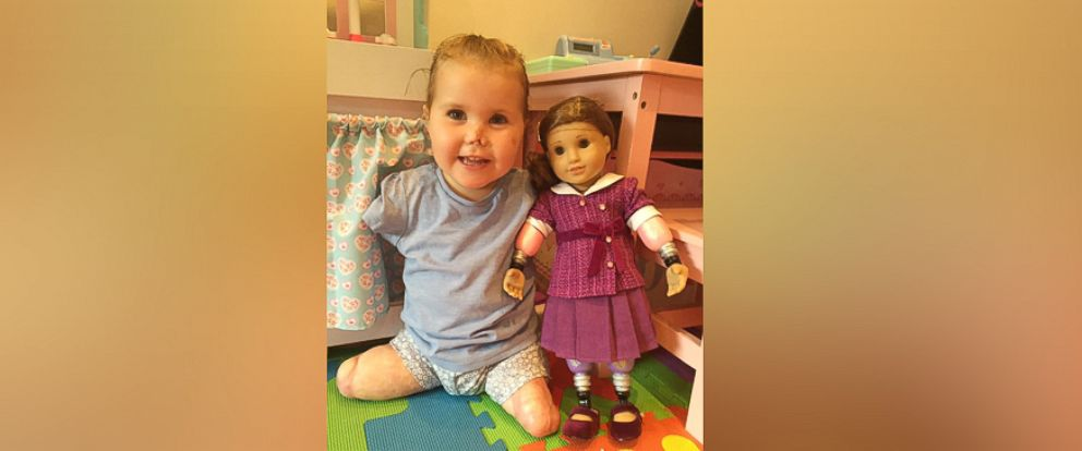 "PHOTO: Harmonie-Rose Ivy Allen, 2, of Bath, England, who lost her limbs from meningitis B at 11 months old, received an American Girl doll on July 31 that ""looks just like her."""