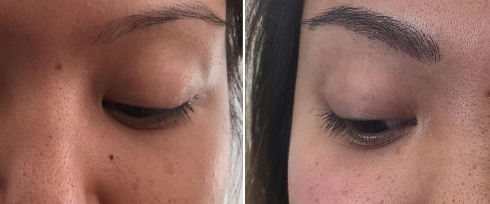 PHOTO: A before and after photo shows the results of eyebrow microblading.