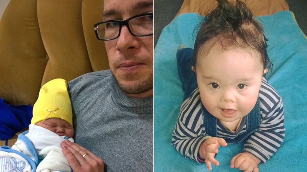 Wife Makes Husband Choose: Me or Our Down Syndrome Baby?