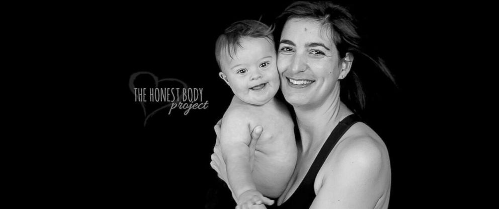 "PHOTO: The ""Defined by Our Hearts"" photo series by The Honest Body Project celebrates the unbreakable bond between moms and their children with special needs."