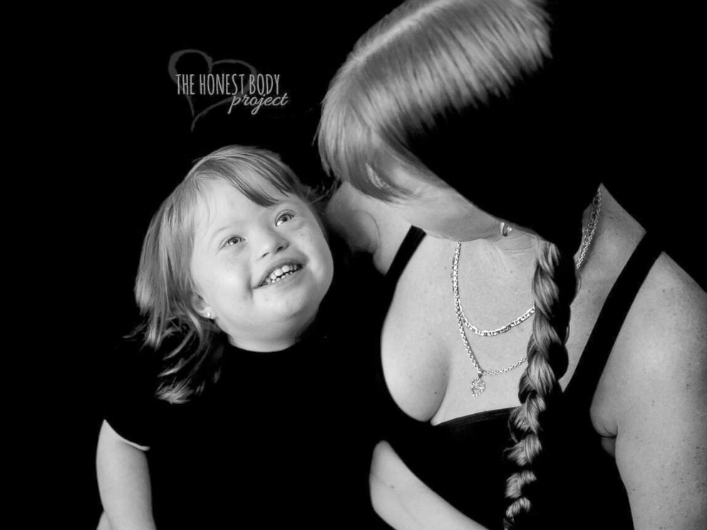 PHOTO: The Defined by Our Hearts photo series by The Honest Body Project celebrates the unbreakable bond between moms and their children with special needs.