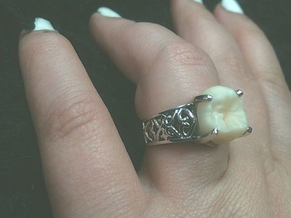 PHOTO: Carlee Leifkes engagement ring, pictured here, is made from her fiance Lucas Ungers wisdom tooth.