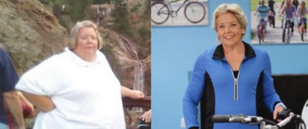 PHOTO: Woman's Dramatic 280-Pound Weight Loss : 'I Have My Life Back'