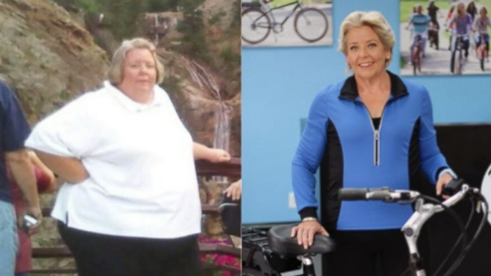 Woman's Dramatic 280-Pound Weight Loss: 'I Have My Life Back