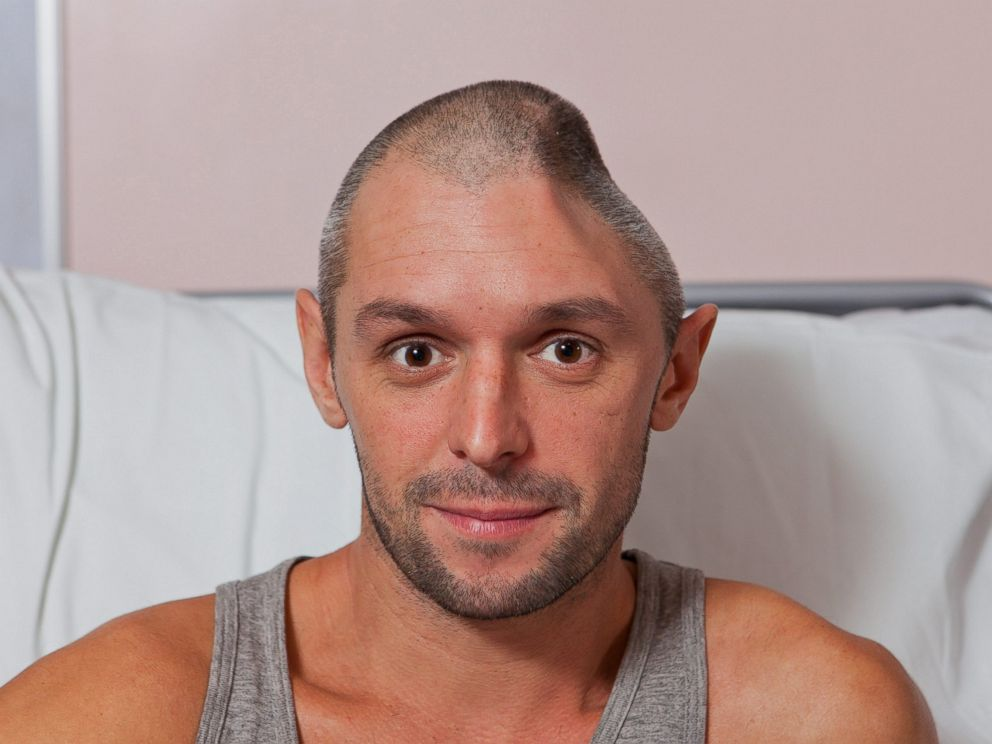 PHOTO: Lee Charie recovers in Addenbrookes Hospital, Cambridge, after falling from a hotel balcony which shattered the left side of his skull.