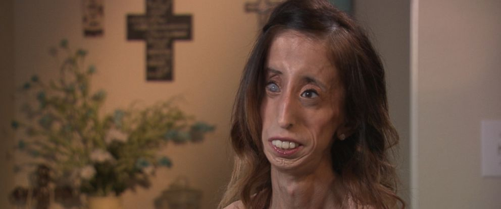 "Lizzie Velasquez, 26, is seen here during an interview with ""Nightline."" A new movie about her life called, ""A Brave Heart,"" will be released on Sept. 25, 2015."