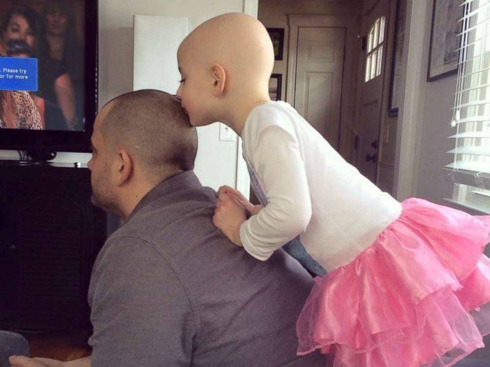 PHOTO:Riley Sylvaria, 6, who has alopecia, kisses her father Daves head in a candid moment.