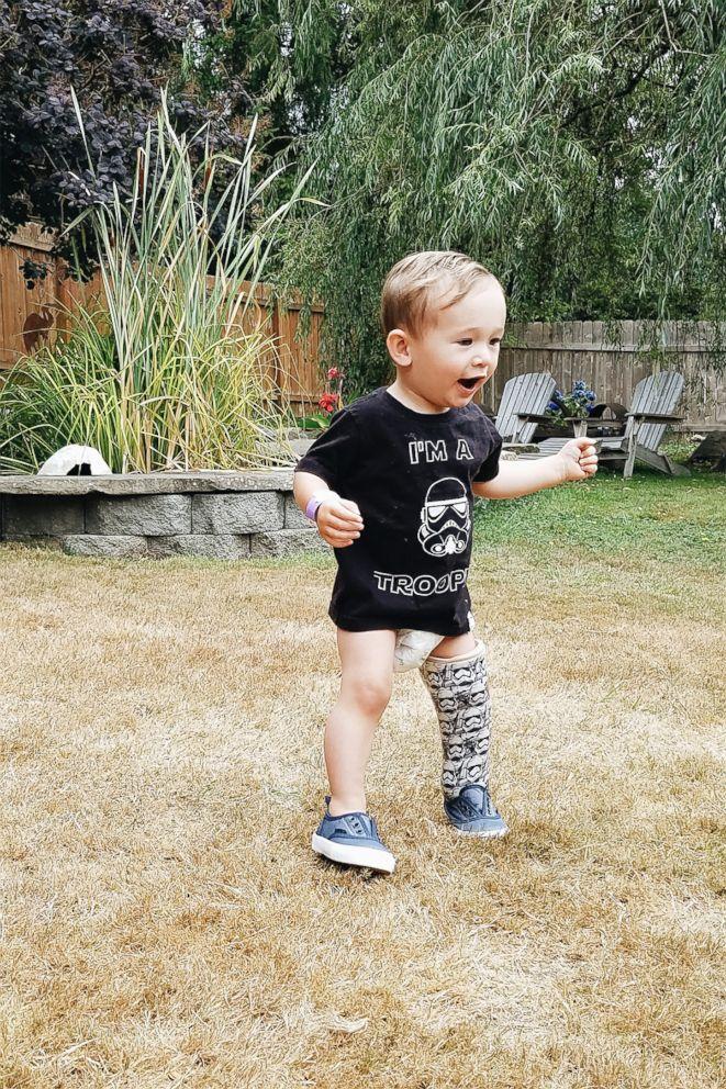 PHOTO: Ben Bronske walks outside on his Star Wars Stormtrooper prosthetic.