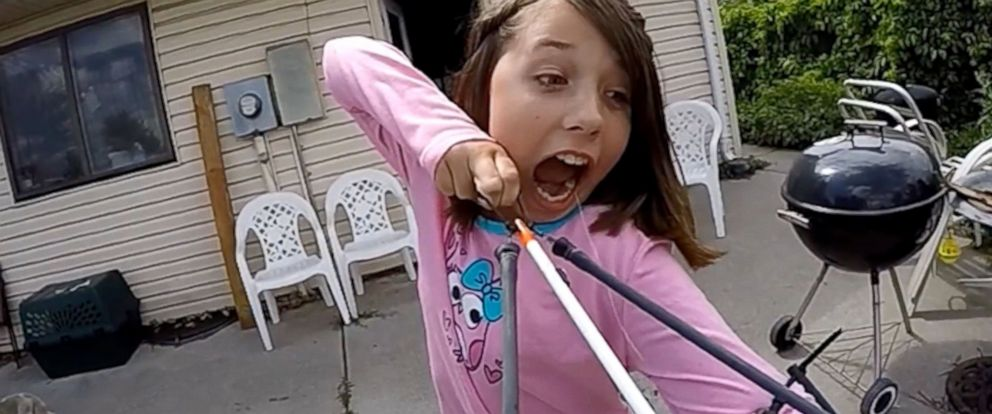 PHOTO: The video shows Alexis Davidson, 11, from Aurora Colorado preparing to fire the slingshot as a way of removing one of her last few baby teeth.