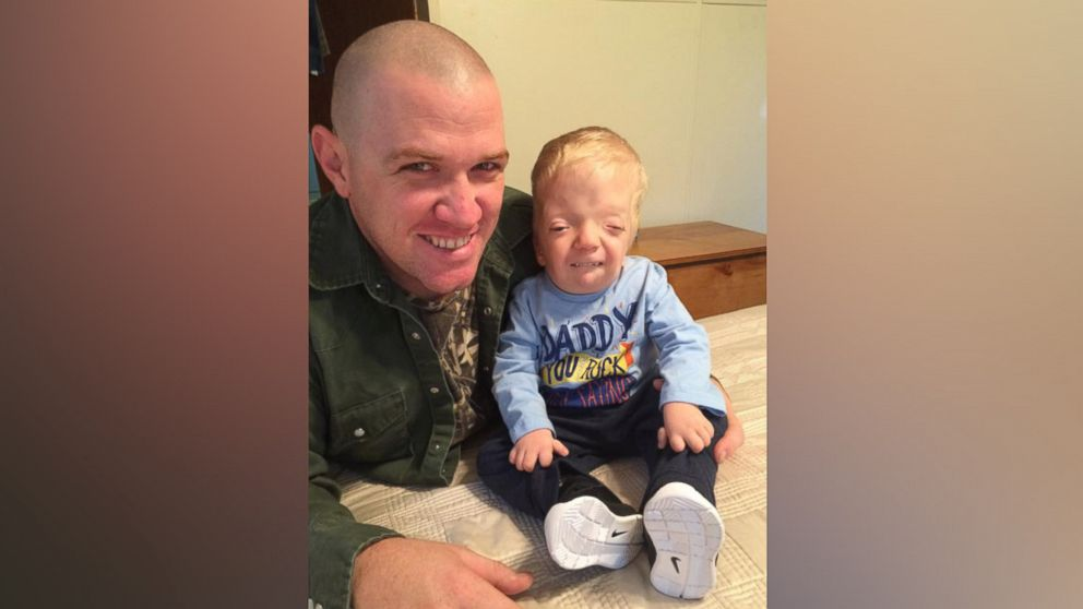 Mom Fights Back Against Cruel Meme of Terminally Ill Toddler