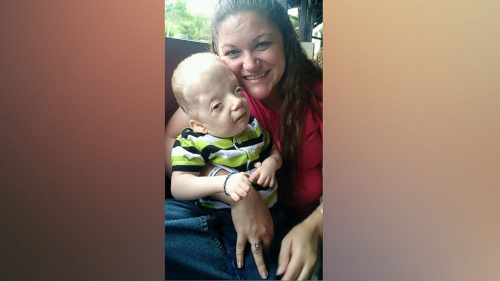 Mom Fights Back Against Cruel Meme of Terminally-Ill Toddler