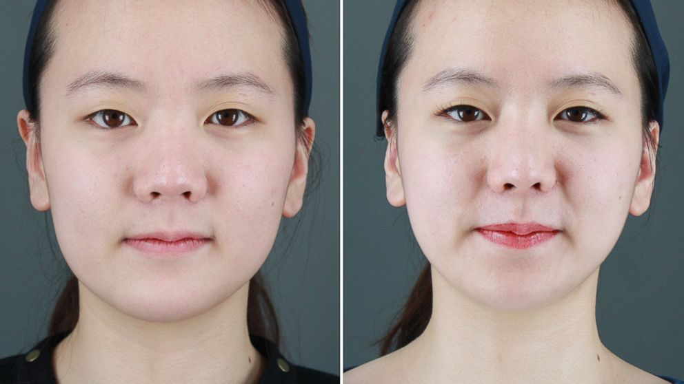 South Koreas Growing Obsession With Cosmetic Surgery Abc News