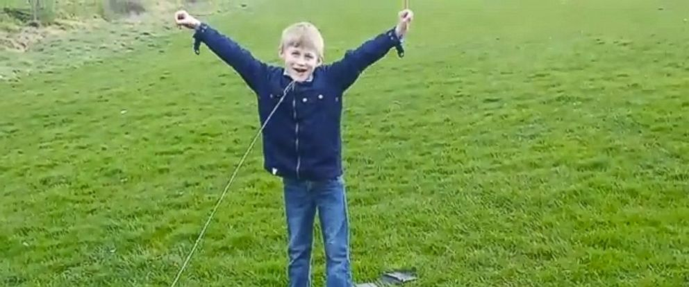 PHOTO: Dad uses dental floss and quadcopter to pull sons loose tooth.