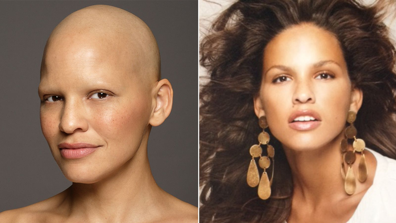 Model Mieko Rye Poses After Chemotherapy To Inspire Other Women