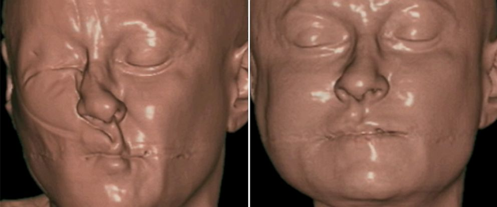 PHOTO: JuveRest pillow could help with sleep wrinkles.