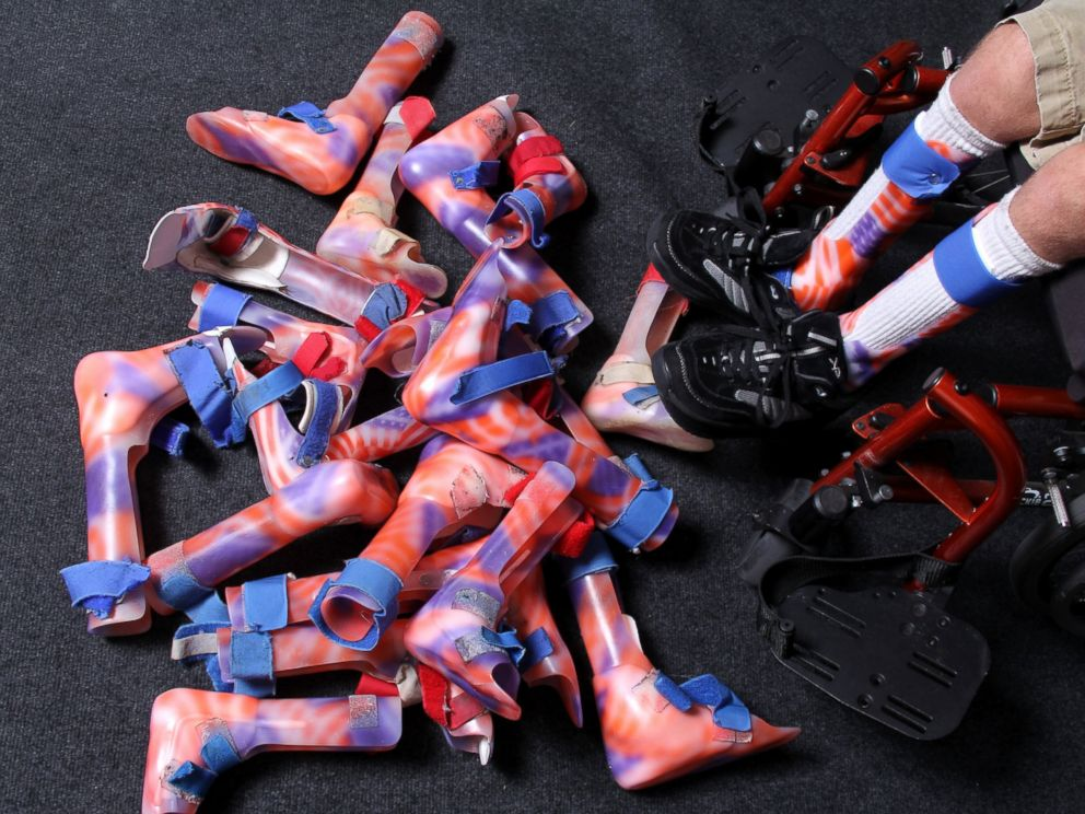 PHOTO: Arek has 10 pairs of leg braces, all decorated with the American flag.