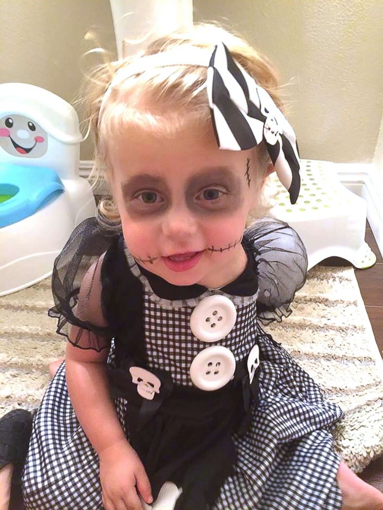 PHOTO Scarlette Tipton 3 who lost her left arm because of a rare  sc 1 st  ABC News & 3-year-old amputee shows off one-of-a-kind Halloween costumes - ABC News