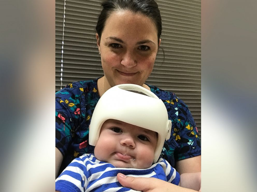 PHOTO: Mother of two Shayna Gutierrez with her 4-month-old Jonas Gutierrez, who was diagnosed with plagiocephaly in July.