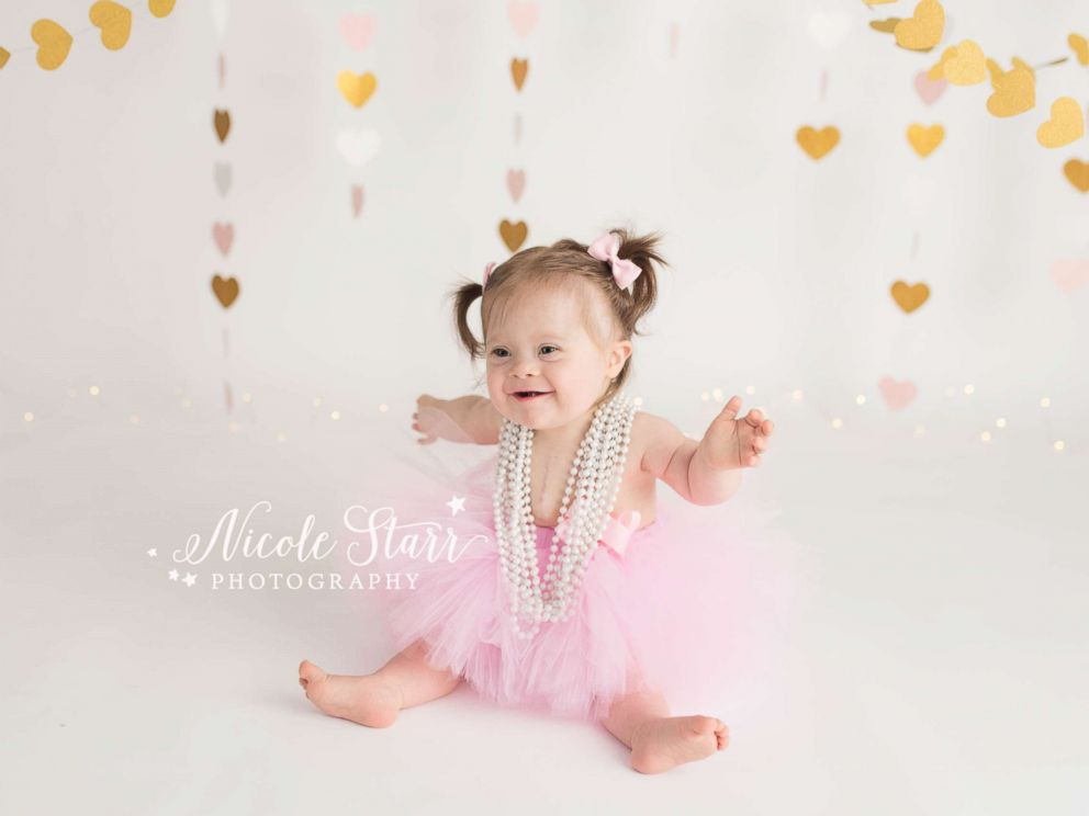 PHOTO: Babies Three of Hearts photo shoot celebrates Down syndrome and life after heart surgery.