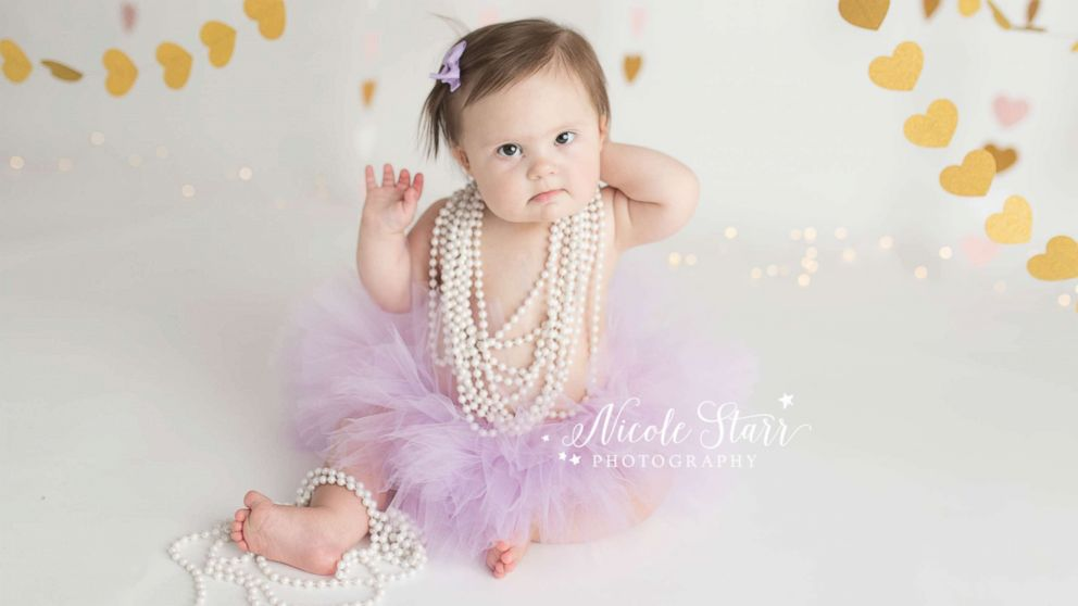 Babies' Three of Hearts photo shoot celebrates Down syndrome and life after heart surgery.