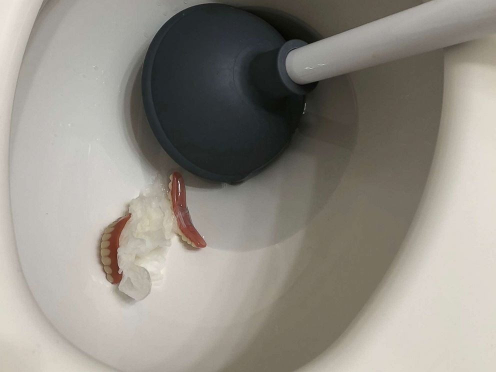 PHOTO: A California plumber was surprised when these dentures showed up in a clogged toilet.