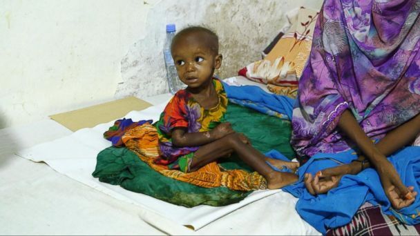 A desperate plea for help as 4 African nations near a famine crisis