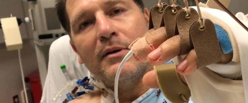 VIDEO: Hollywood execs road to recovery after hand transplant: Part 2