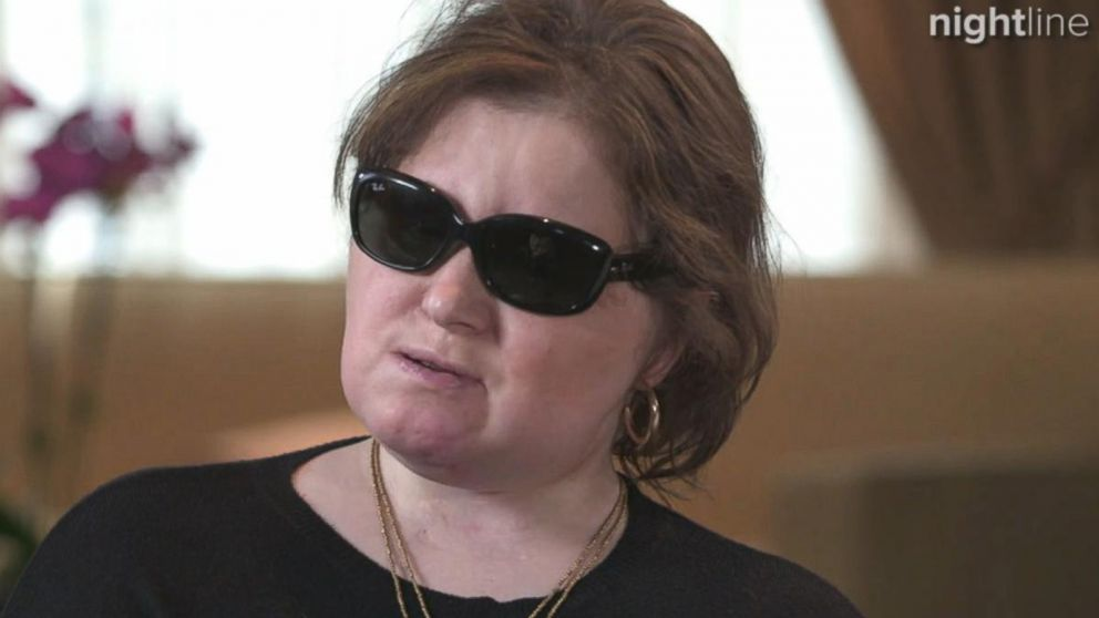 VIDEO: Meet Katie Stubblefield, the youngest face transplant recipient in the US