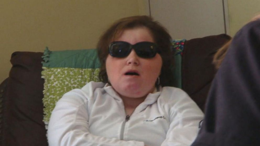 VIDEO: A speech therapy session with USs youngest face transplant recipient