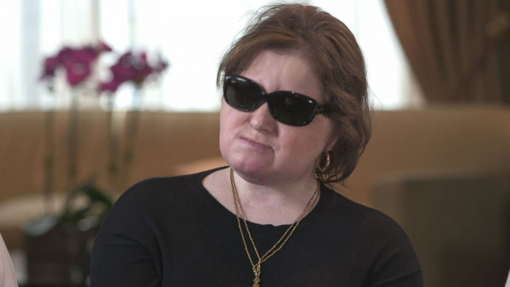 67f92b27a32f4 Youngest US face transplant recipient shares story of suicide ...