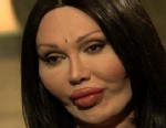 Pete Burns Plastic Surgery Nightmare