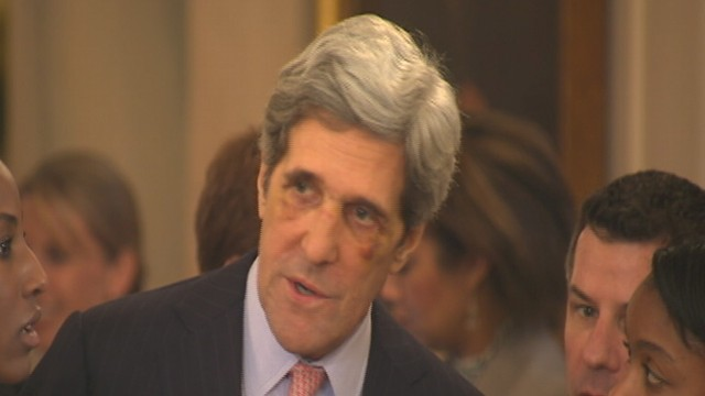 VIDEO: Sen. John Kerry Sports Black Eyes at White House