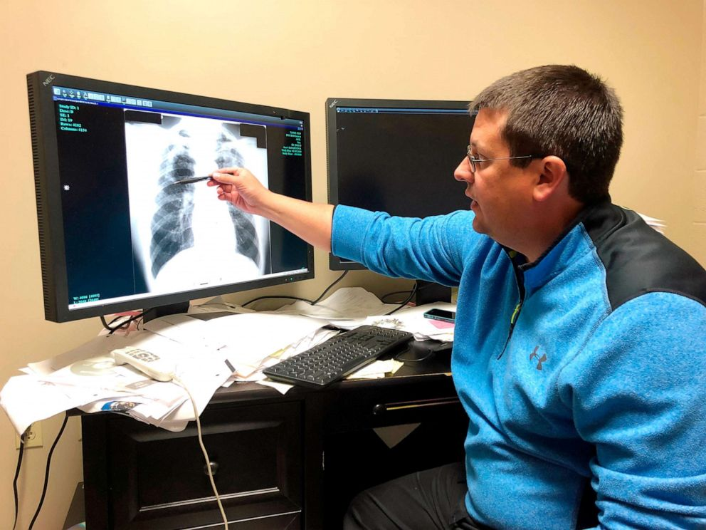 PHOTO: Dr. Brandon Crum points to the X-ray of a black lung patient at his office in Pikeville, Ky., Jan. 24, 2019.