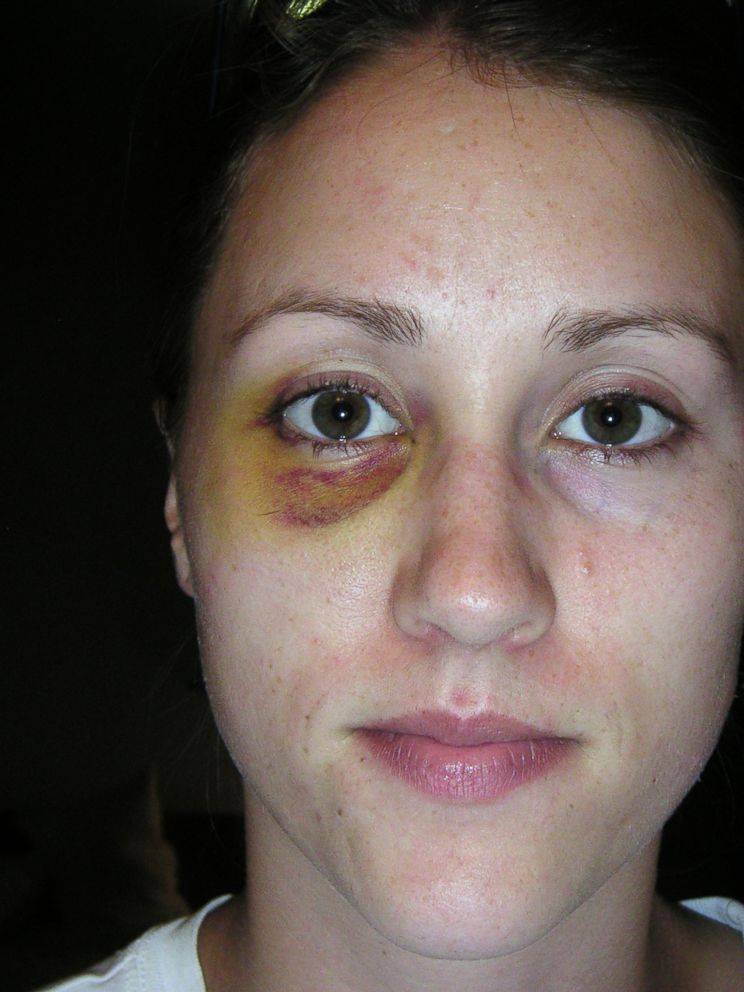 PHOTO: Colbie Holderness released this photo showing a black and blue eye. She claims Rob Porter punched her in the face more than a decade ago.