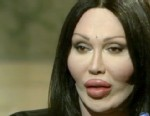 VIDEO: Pete Burns interview on plastic surgery