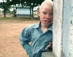 PHOTO Tanzanian Albinos Hunted Down