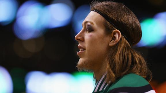 Kelly Olynyk Eye