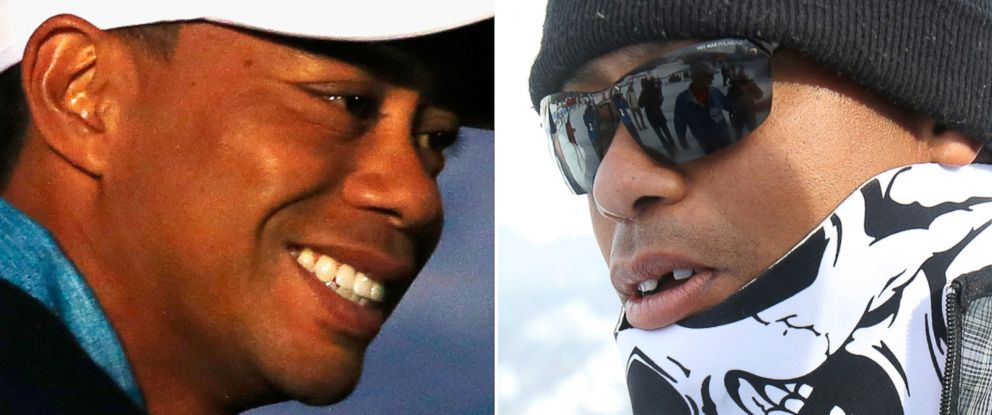 PHOTO: Tiger Woods is no longer missing his tooth, left, on Jan. 7, 2015. His tooth appeared missing on Jan. 19, 2015, right.