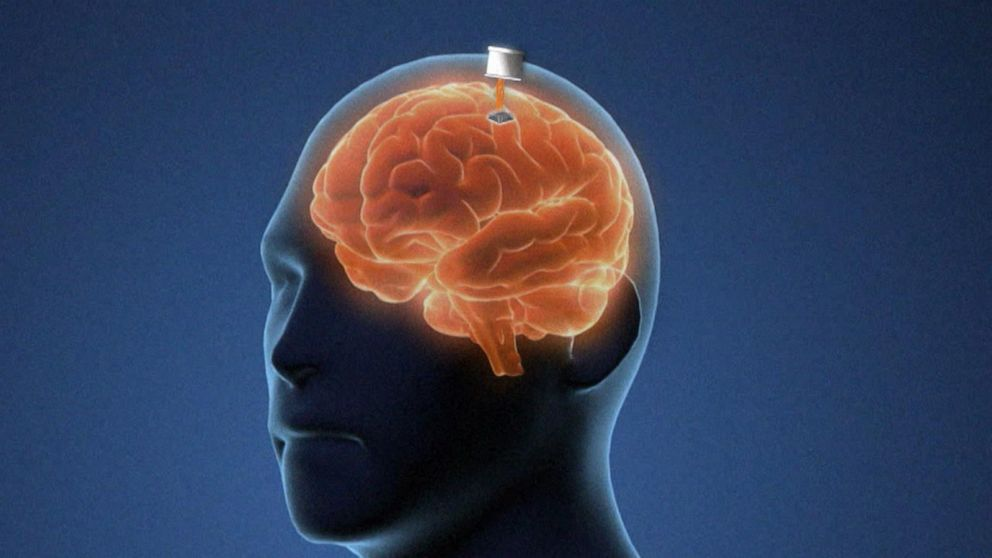 Brain Chips aim to revolutionize Tech by merging Humans, Computers